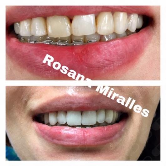 Rosana del Milagro Miralles - Multimedia