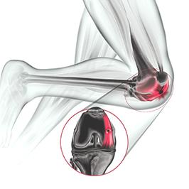 Síndrome da Plica Sinovial