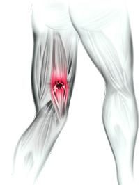 Distensão da Musculatura Posterior da Coxa