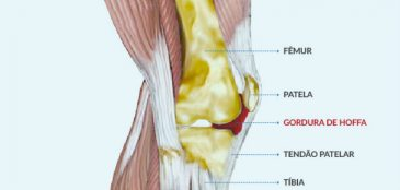 Anatomia de um joelho com hoffite