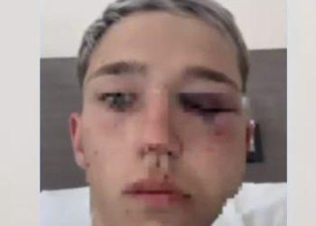 el audio de los rugbiers que desfiguraron a un chico en Mendoza /Titulares de Policiales
